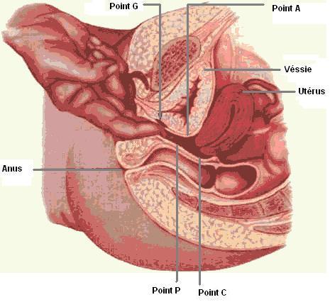 Comment faire une hystérectomie vaginale